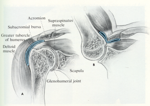 Soft Tissue Rheumatism And Common Regional Rheumatic
